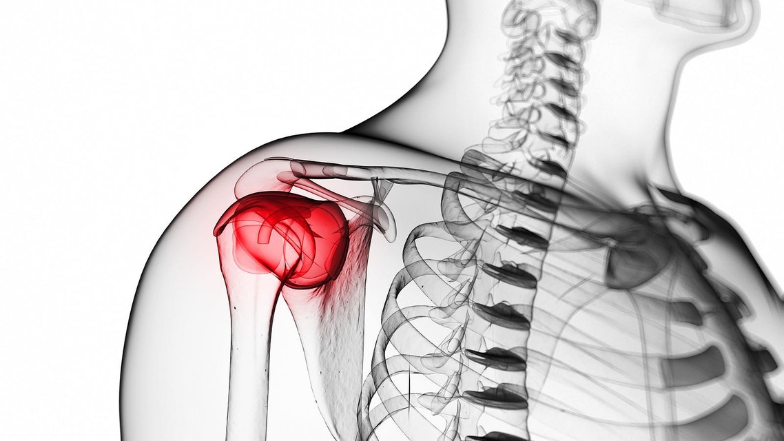 Rotator Cuff Tendinopathy - Physiopedia
